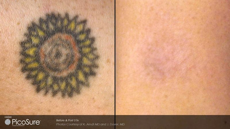 Laser tattoo removal chicago il