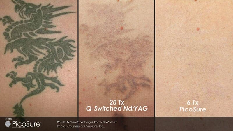 best Laser tattoo removal in chicago