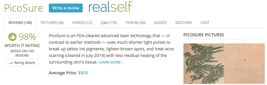 real-self-review-picosure-laser-tattoo-removal
