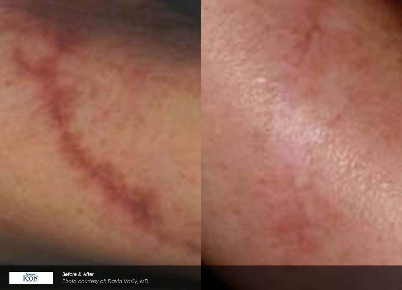 Scar Reduction And Removal Chicago Il Chicago Breast Body
