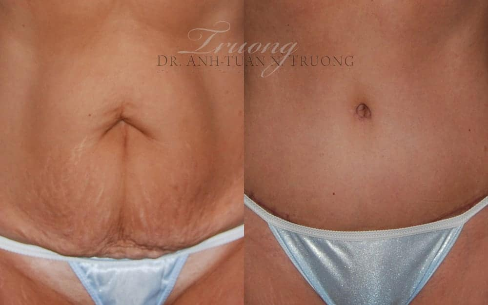 c-section-scar-removal3
