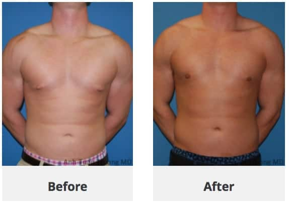 Male Breast Reduction Chicago Top Gynecomastia Surgery In
