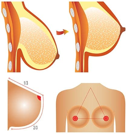 how long does a breast lift take