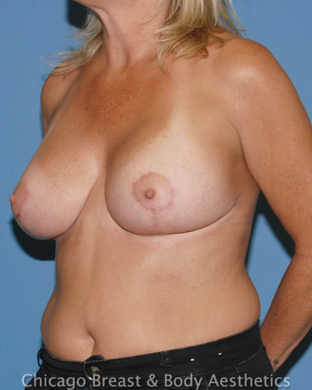 Breast Lift Patient Photo - Case 6511 - after view-25