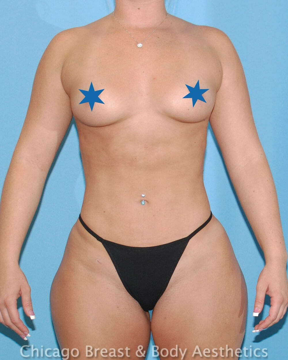 Brazilian Butt Lift Patient Photo - Case 31352 - after view-7