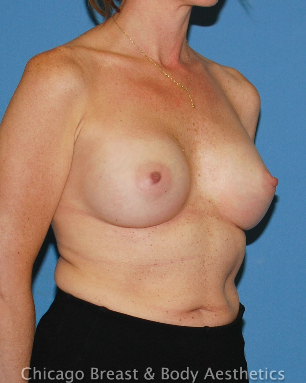 Breast Augmentation Patient Photo - Case 32574 - after view-2