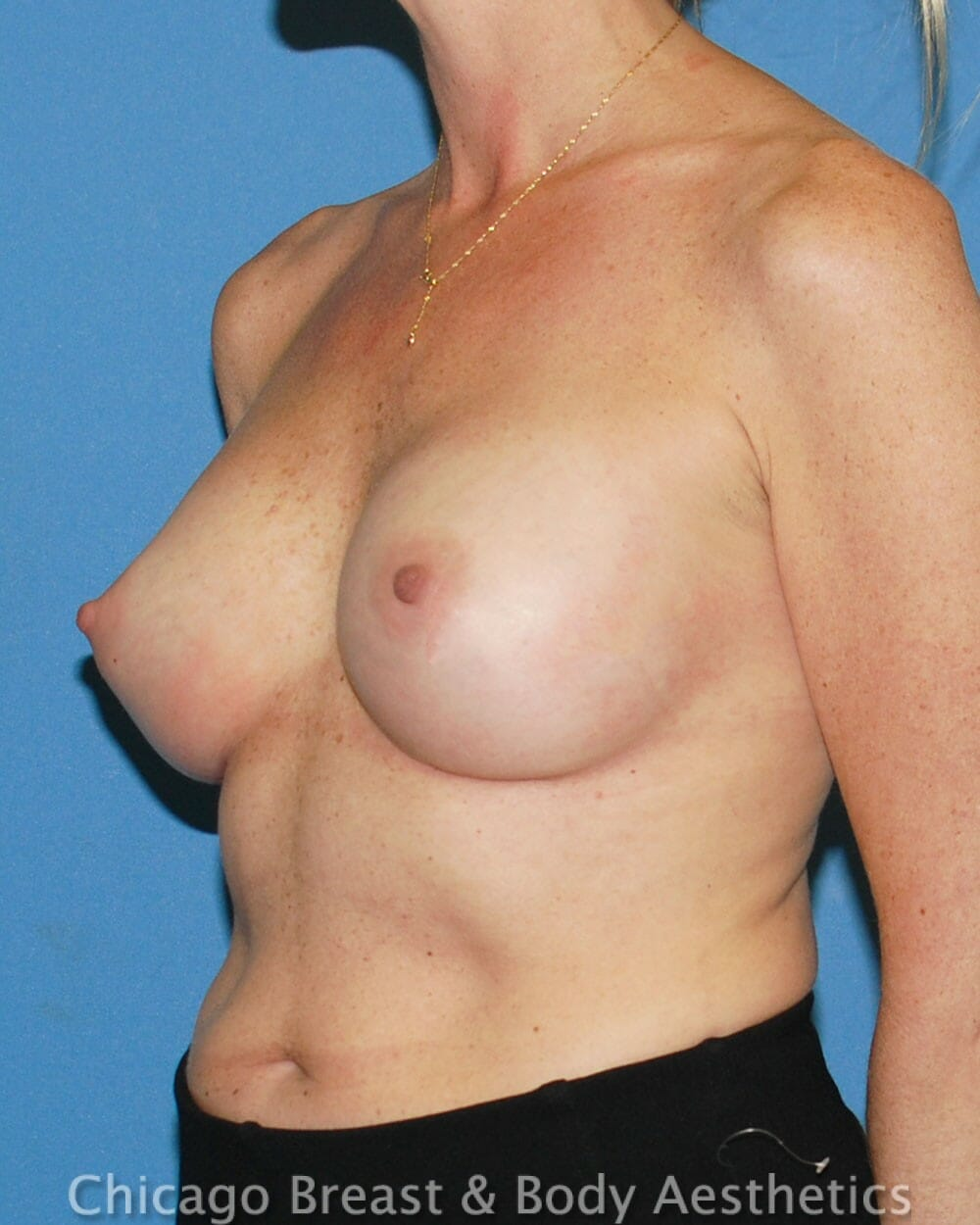 Breast Augmentation Patient Photo - Case 32574 - after view-1