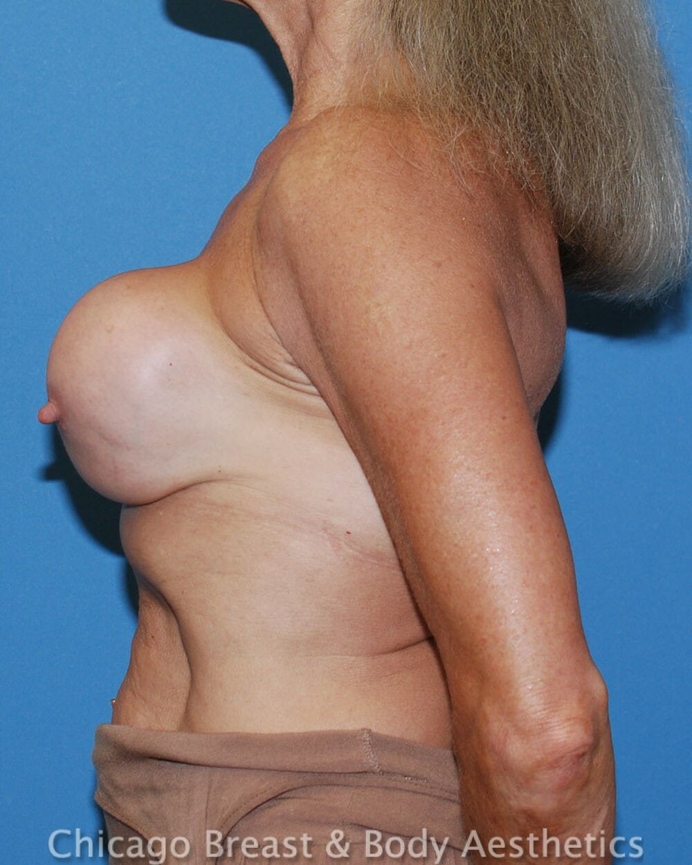 Breast Augmentation Revision Patient Photo - Case 32612 - before view-3