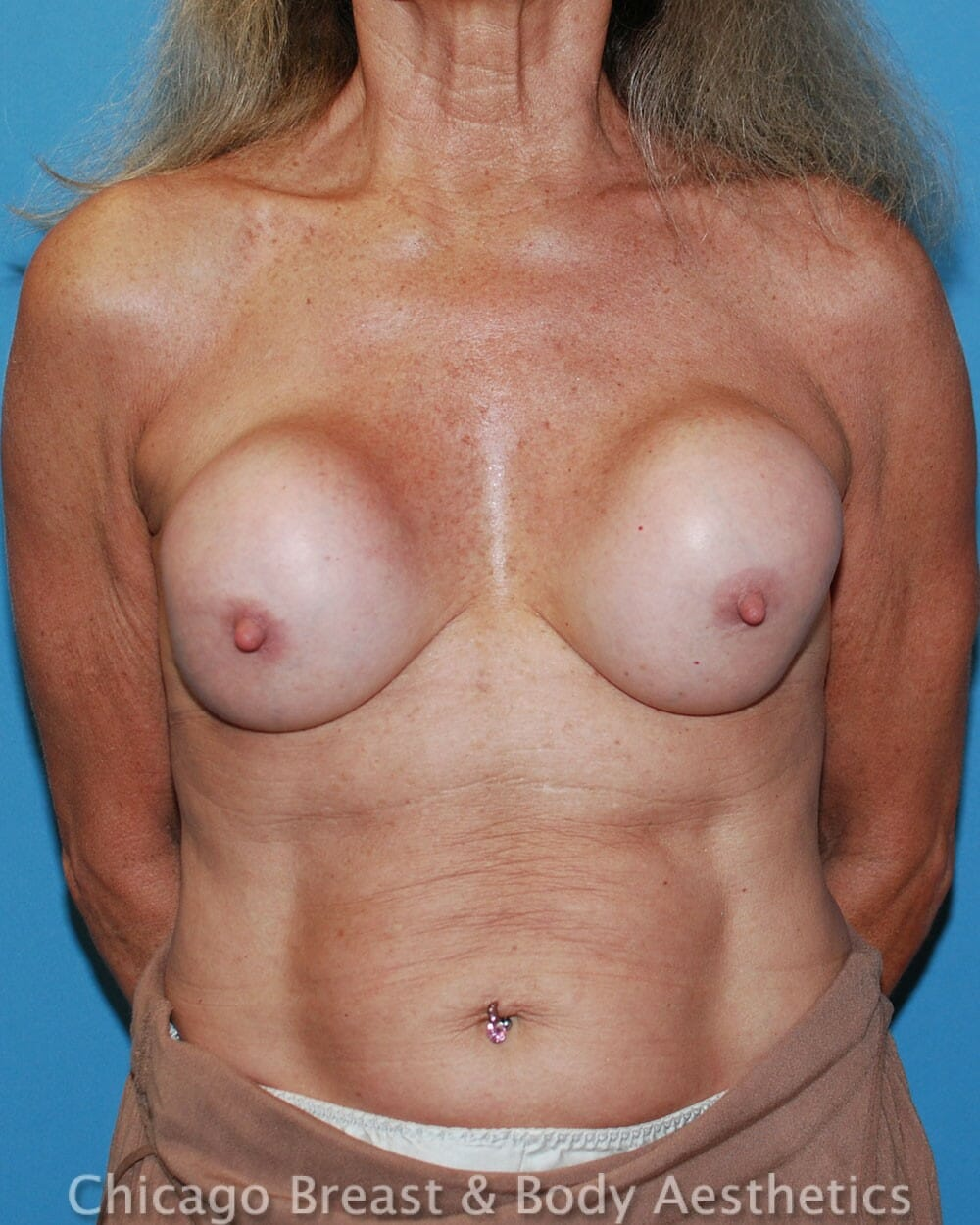 Breast Augmentation Revision Patient Photo - Case 32612 - before view-2