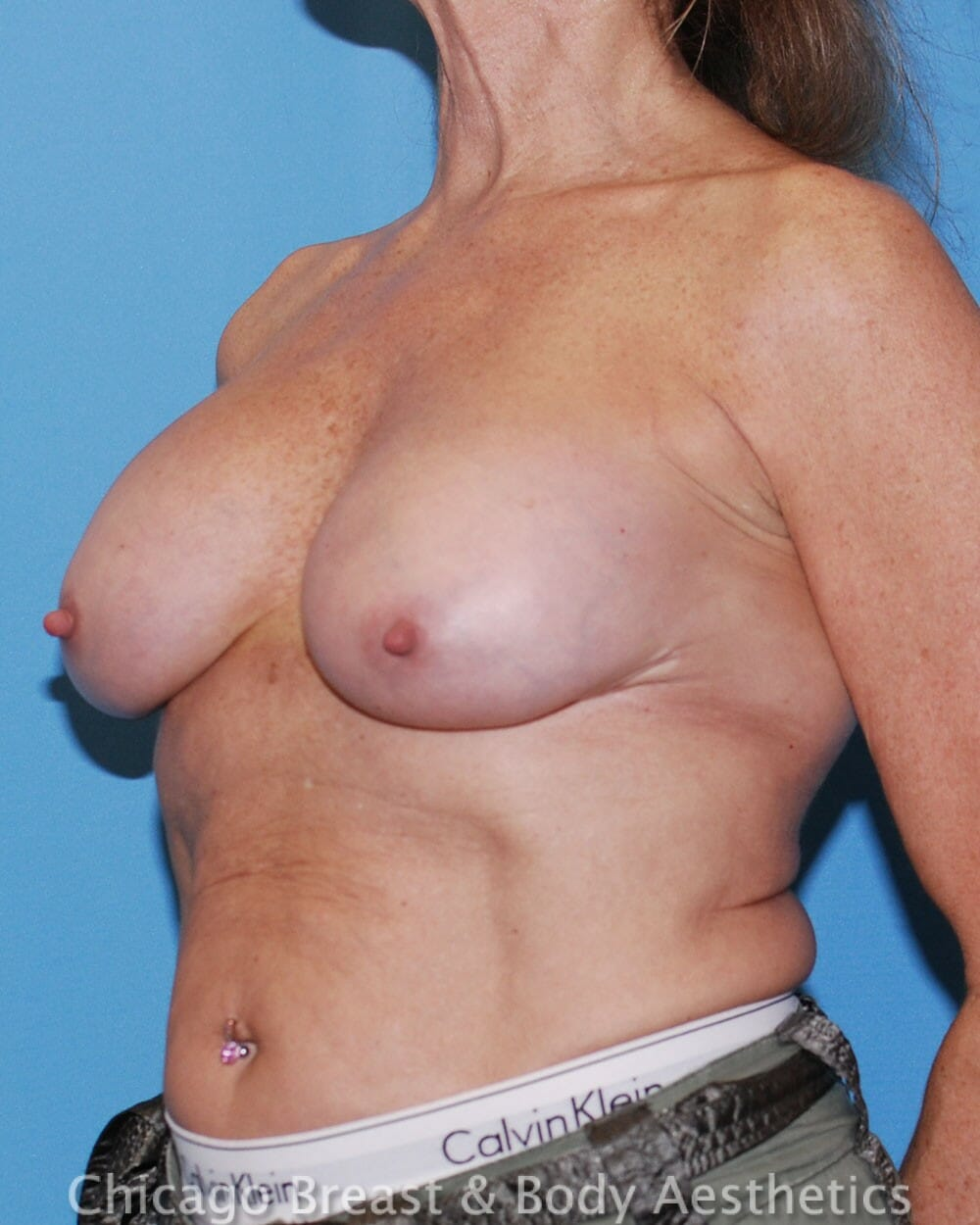Breast Augmentation Revision Patient Photo - Case 32612 - after view