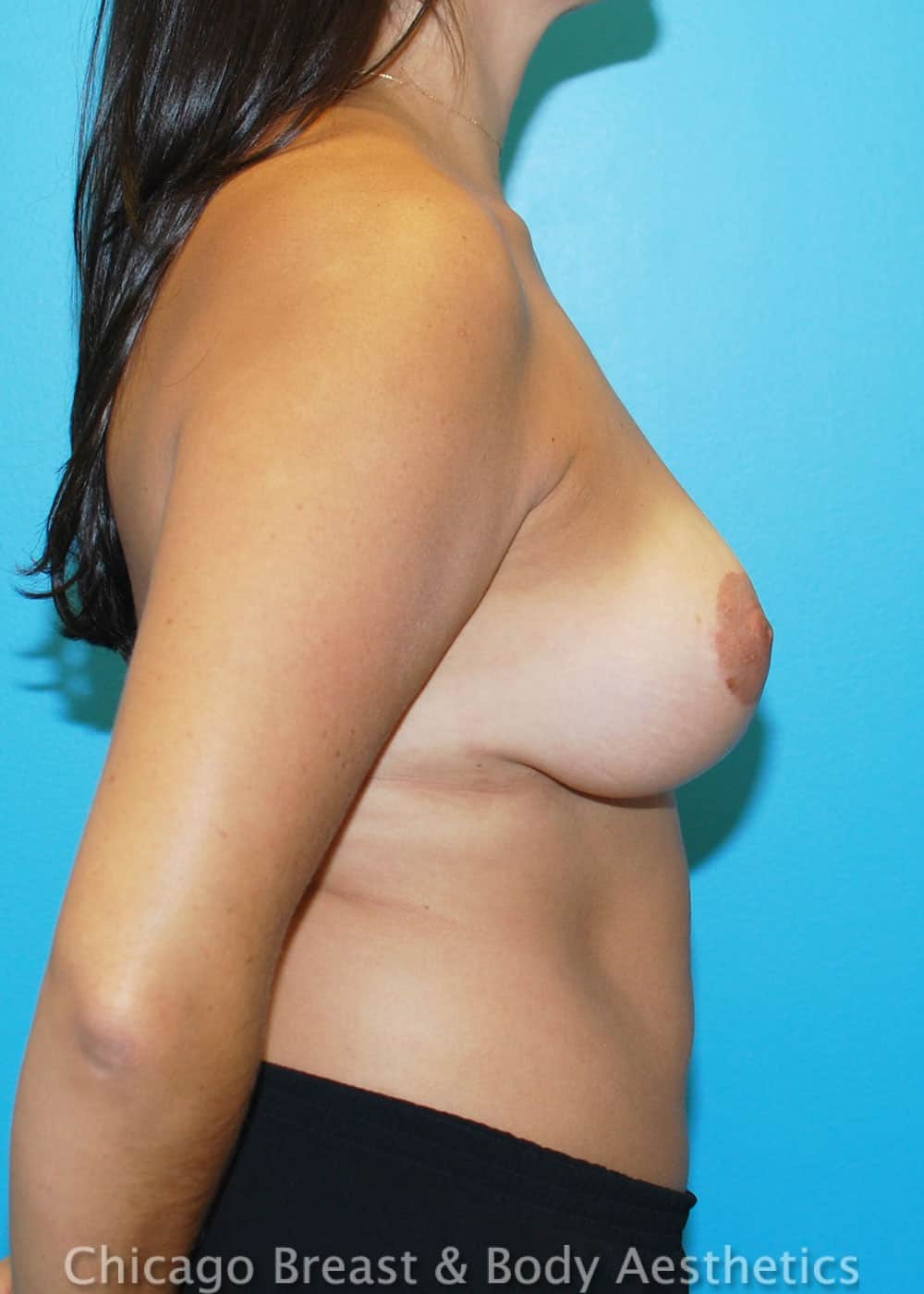 Breast Lift Patient Photo - Case 32929 - after view-1