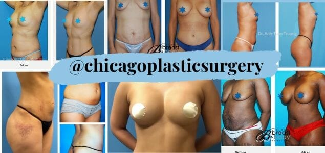 chicago breast and body instagram