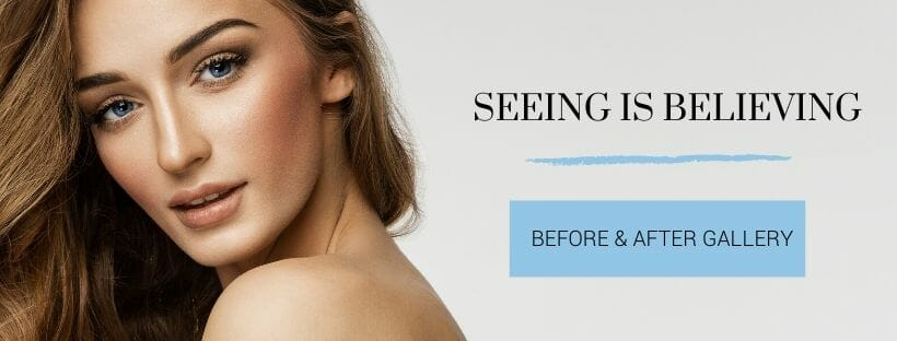 before and after photos dr truong chicago