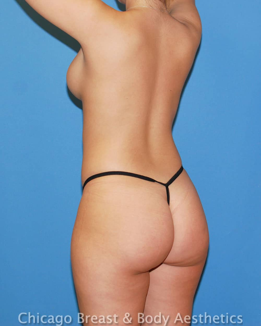 Brazilian Butt Lift Patient Photo - Case 33445 - before view-