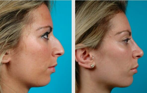 nose surgery chicago