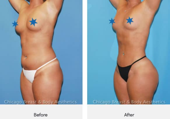 lipo360 before and after