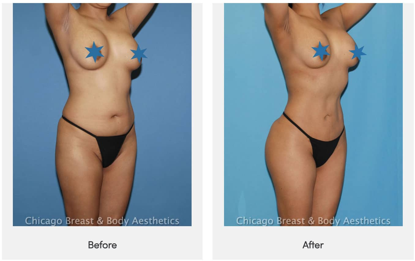 liposuction 360 before after dr truong