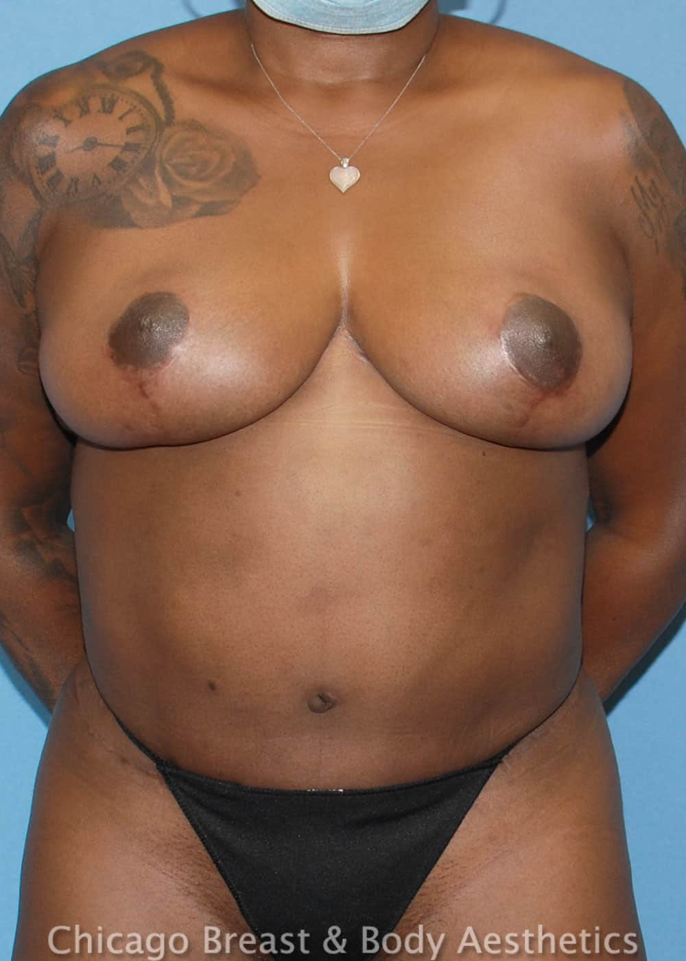 Breast Lift Patient Photo - Case 35547 - after view