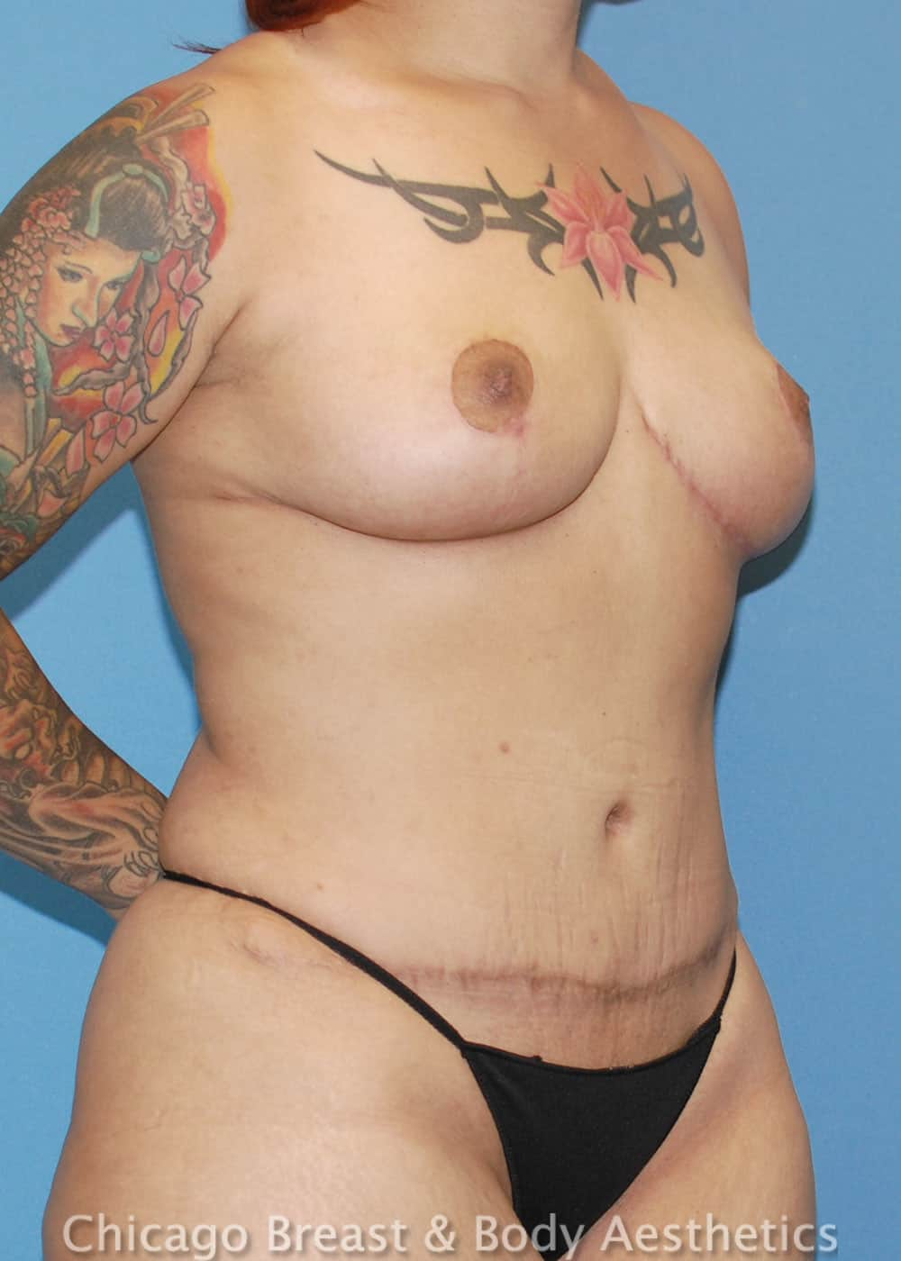 Breast Lift Patient Photo - Case 35556 - after view-2