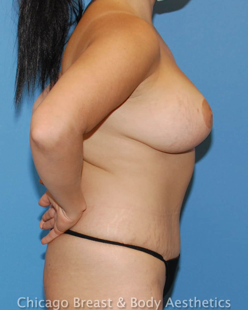 Breast Lift Patient Photo - Case 35636 - after view-2