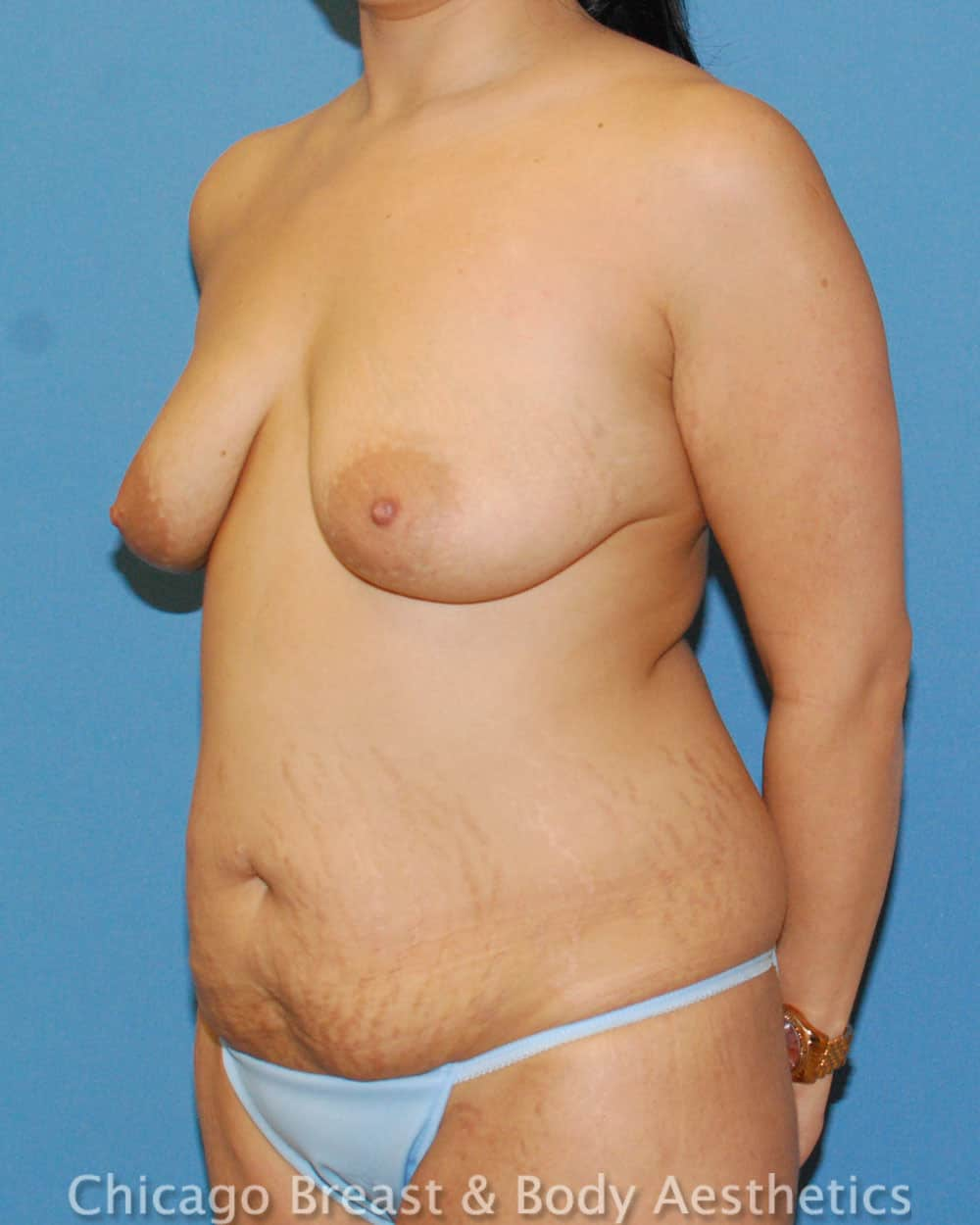 Breast Lift Patient Photo - Case 35636 - before view-3