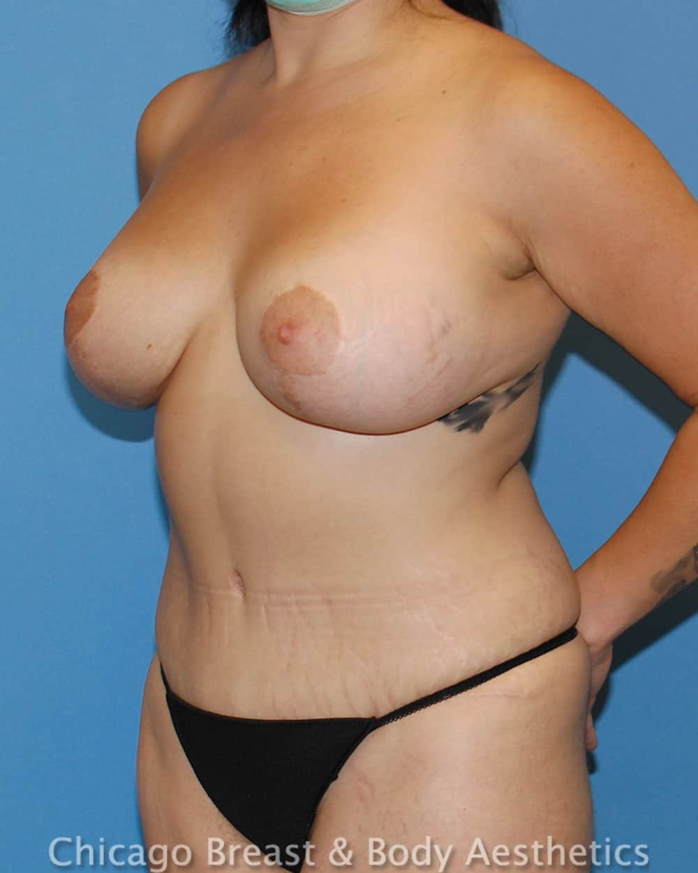 Breast Lift Patient Photo - Case 35636 - after view-3