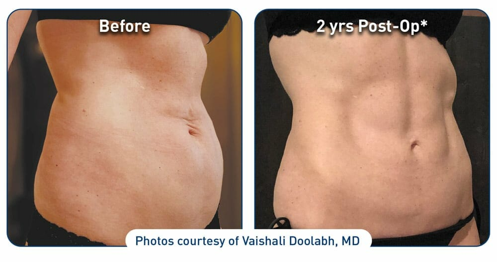 jplasma stomach before after